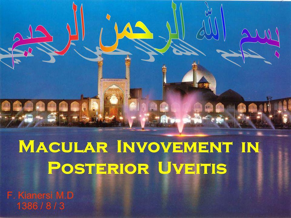 Macular Invovement in Posterior Uveitis F. Kianersi M.D 1386 / 8 / 3