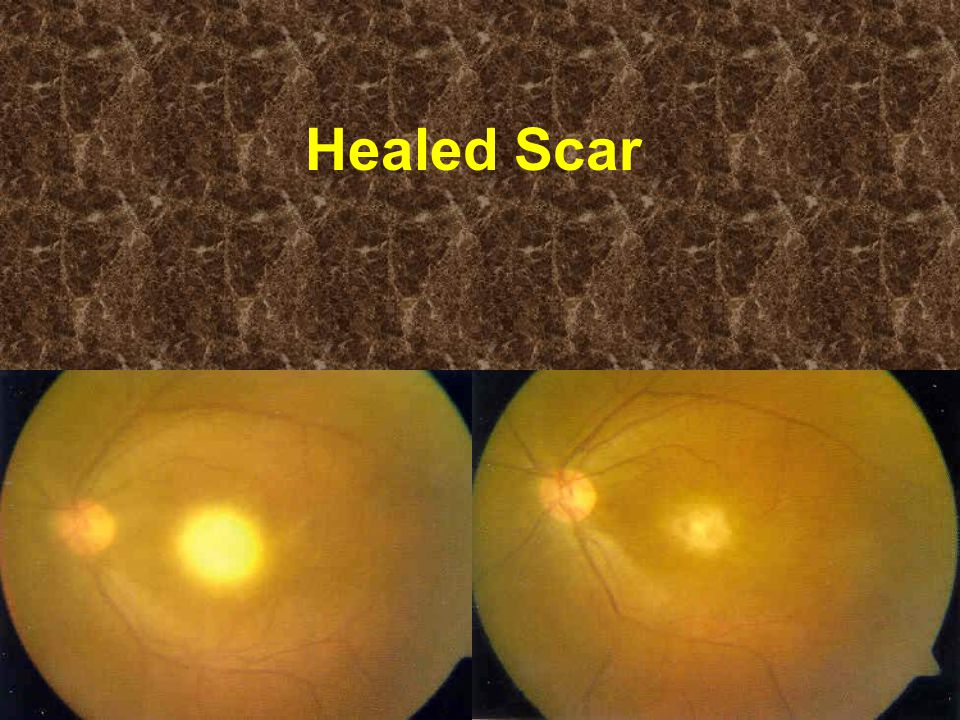 Healed Scar
