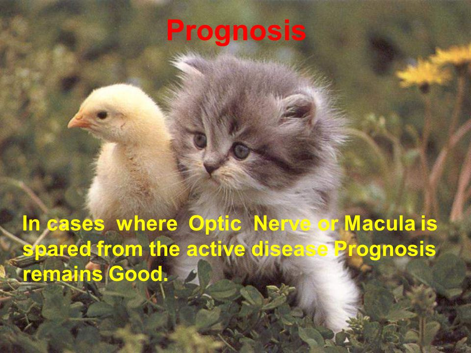 In cases where Optic Nerve or Macula is spared from the active disease Prognosis remains Good. Prognosis