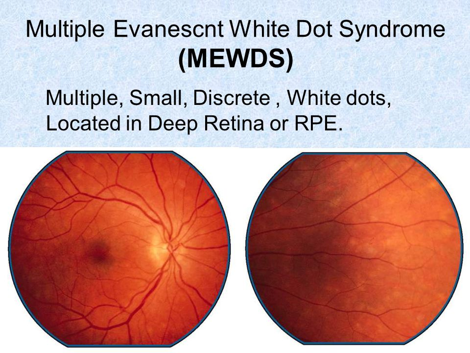 Multiple, Small, Discrete, White dots, Located in Deep Retina or RPE.