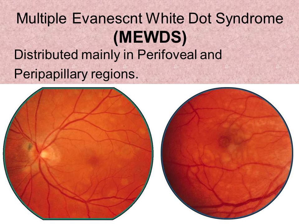 Multiple Evanescnt White Dot Syndrome (MEWDS) Distributed mainly in Perifoveal and Peripapillary regions.