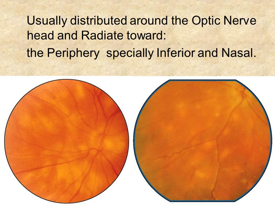 Usually distributed around the Optic Nerve head and Radiate toward: the Periphery specially Inferior and Nasal.