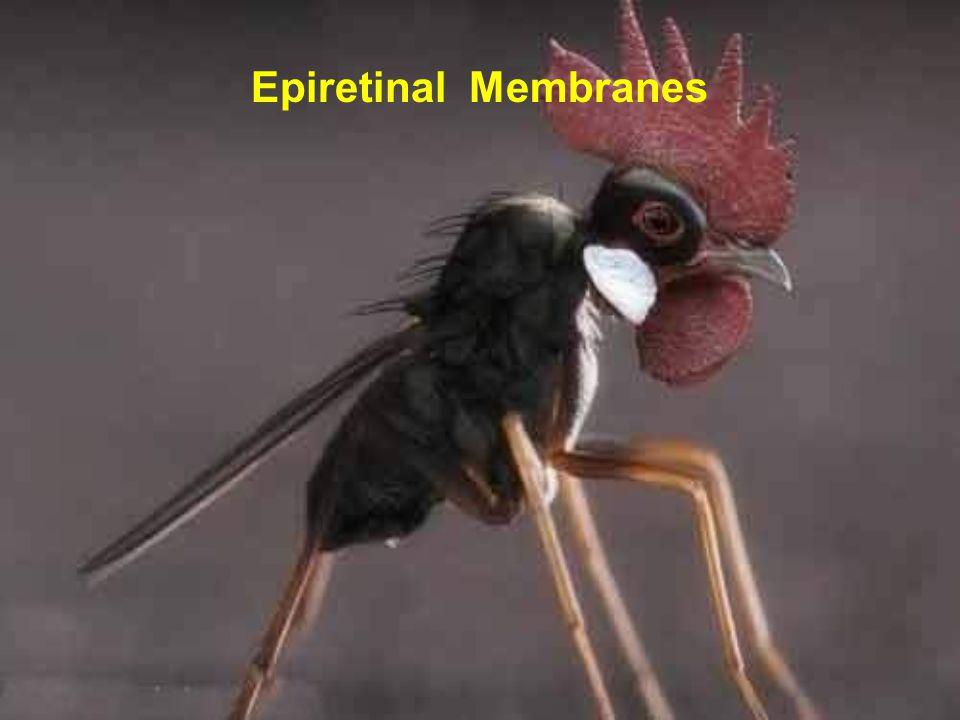 Epiretinal Membranes