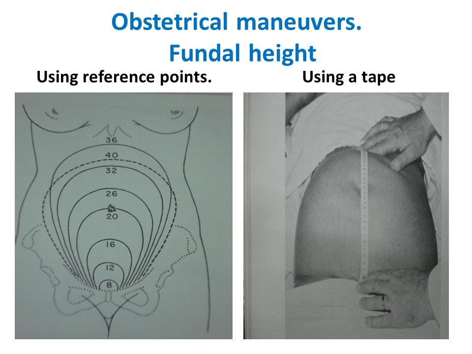 Obstetrical maneuvers. Fundal height Using reference points.Using a tape