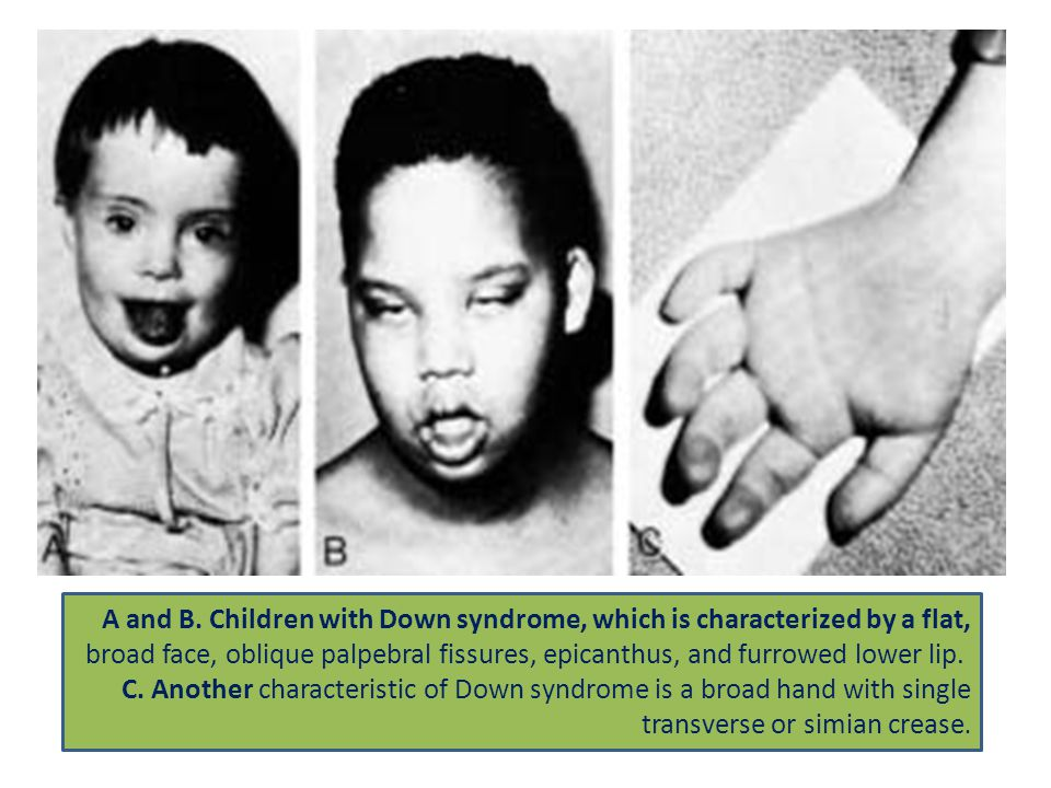 A and B. Children with Down syndrome, which is characterized by a flat, broad face, oblique palpebral fissures, epicanthus, and furrowed lower lip. C.