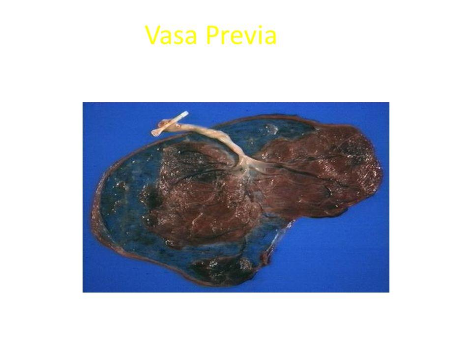 Vasa Previa Succenturiate (Accessory) lobe