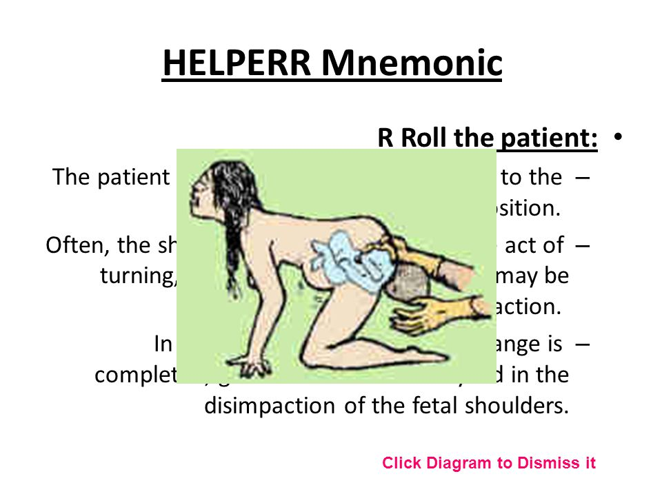 R Roll the patient: – The patient rolls from her existing position to the all-fours position. – Often, the shoulder will dislodge during the act of tu