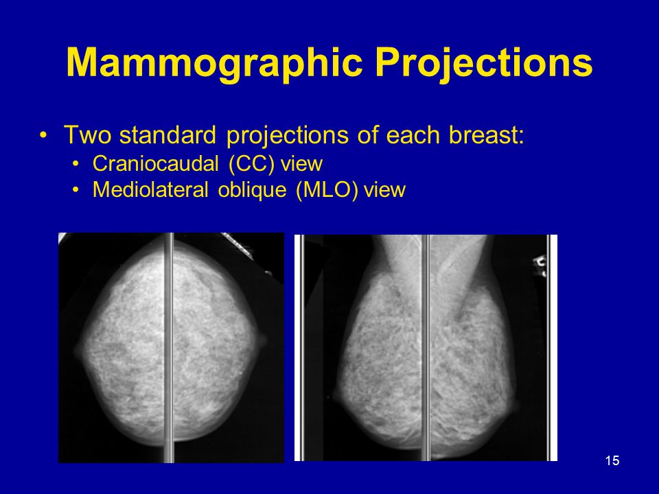 15 Mammographic Projections Two standard projections of each breast: Craniocaudal (CC) view Mediolateral oblique (MLO) view