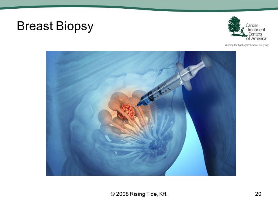 Breast Biopsy © 2008 Rising Tide, Kft.20