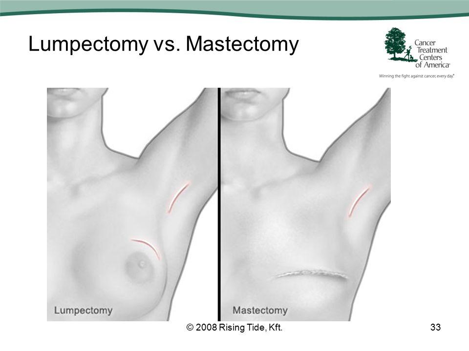 Lumpectomy vs. Mastectomy © 2008 Rising Tide, Kft.33