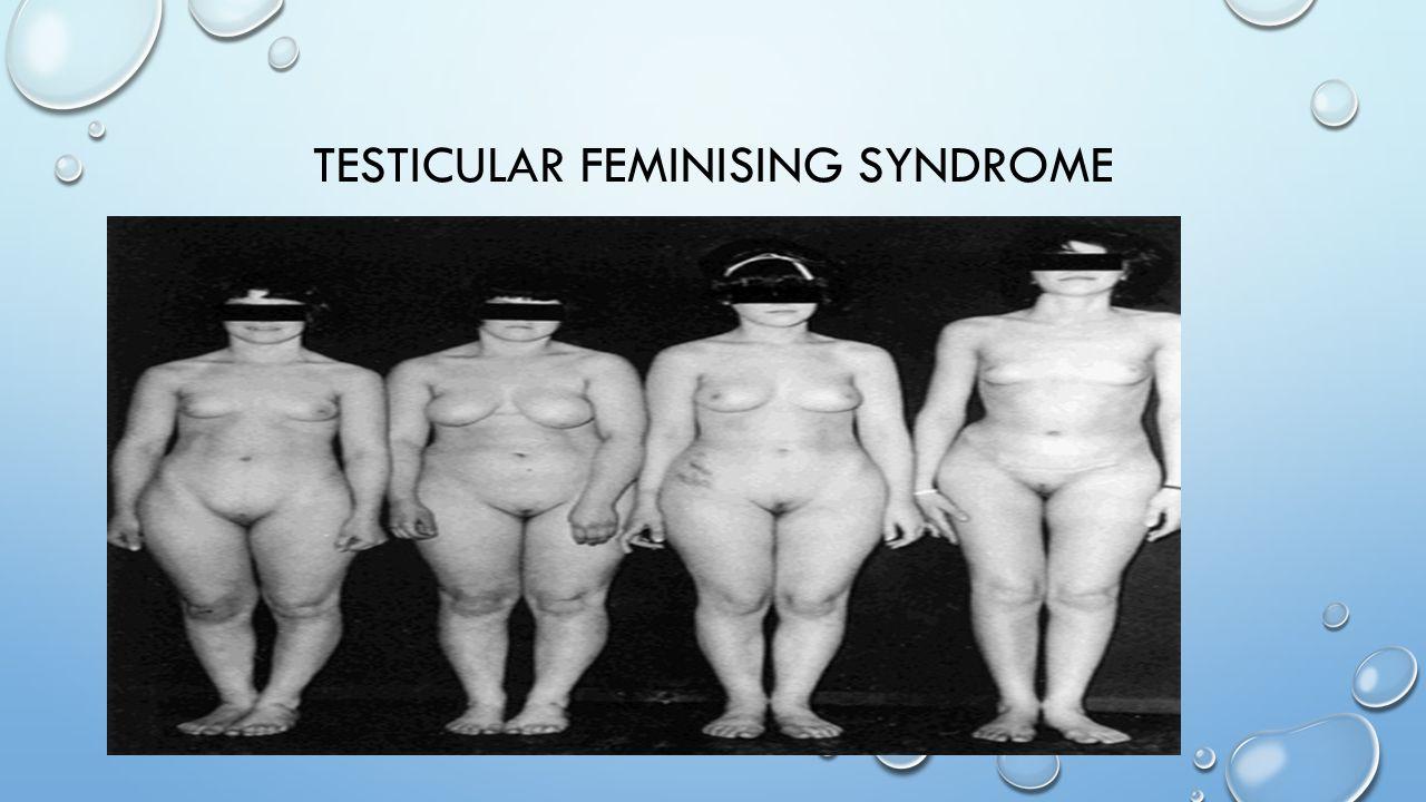 TESTICULAR FEMINISING SYNDROME