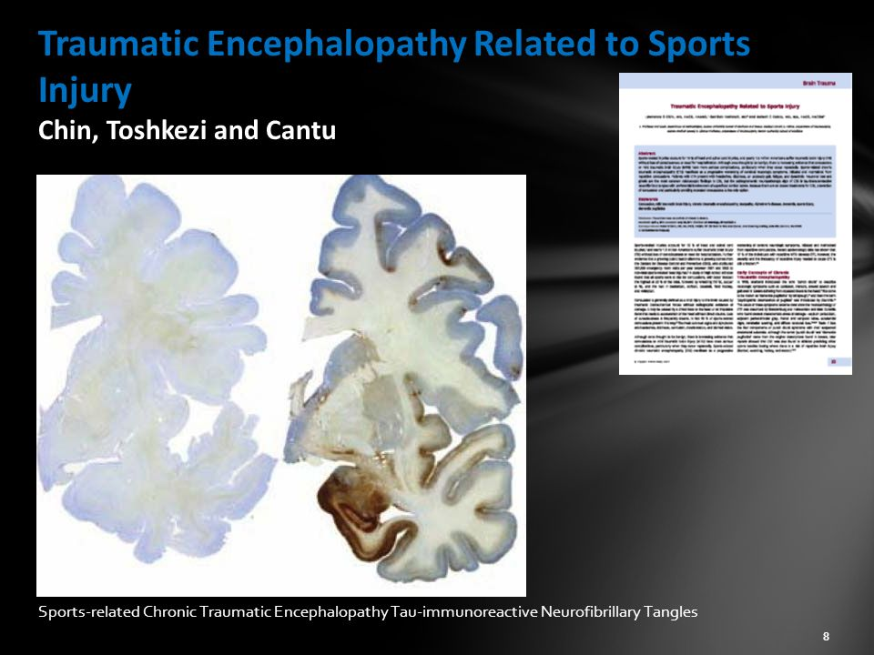 Traumatic Encephalopathy Related to Sports Injury Chin, Toshkezi and Cantu Sports-related Chronic Traumatic Encephalopathy Tau-immunoreactive Neurofibrillary Tangles 8