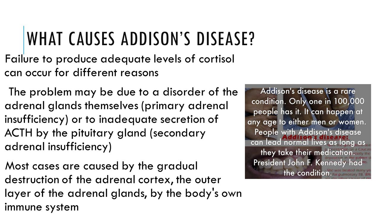 WHAT CAUSES ADDISON'S DISEASE? Failure to produce adequate levels of cortisol can occur for different reasons The problem may be due to a disorder of