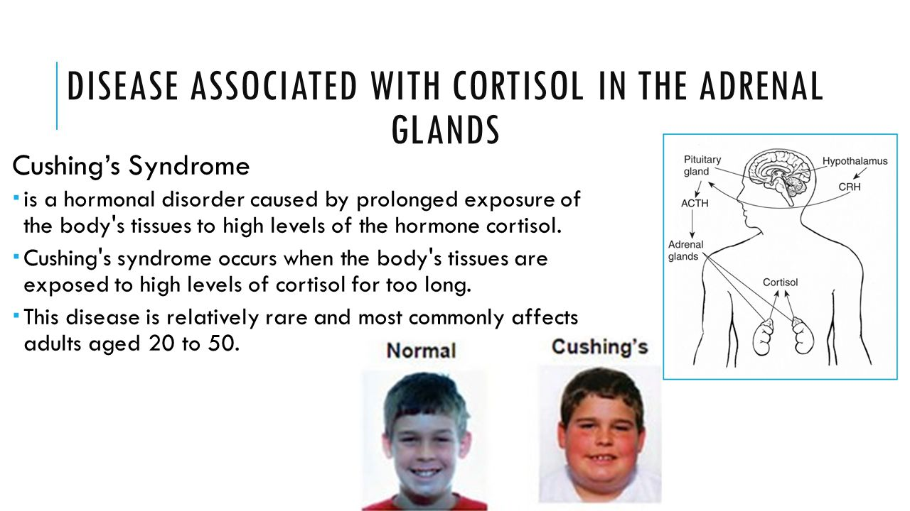 DISEASE ASSOCIATED WITH CORTISOL IN THE ADRENAL GLANDS Cushing's Syndrome  is a hormonal disorder caused by prolonged exposure of the body's tissues