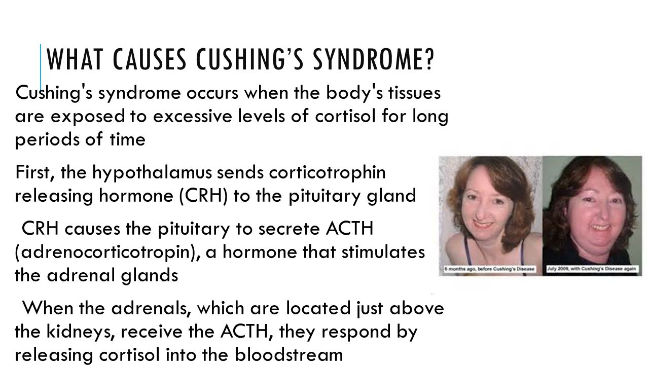 WHAT CAUSES CUSHING'S SYNDROME? Cushing's syndrome occurs when the body's tissues are exposed to excessive levels of cortisol for long periods of time