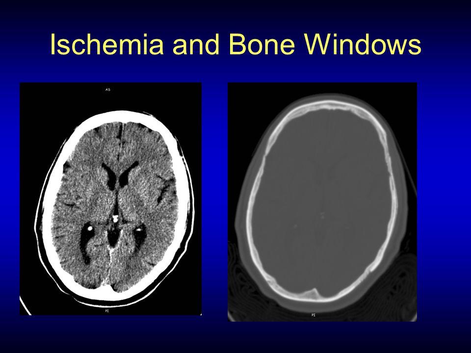 Ischemia and Bone Windows