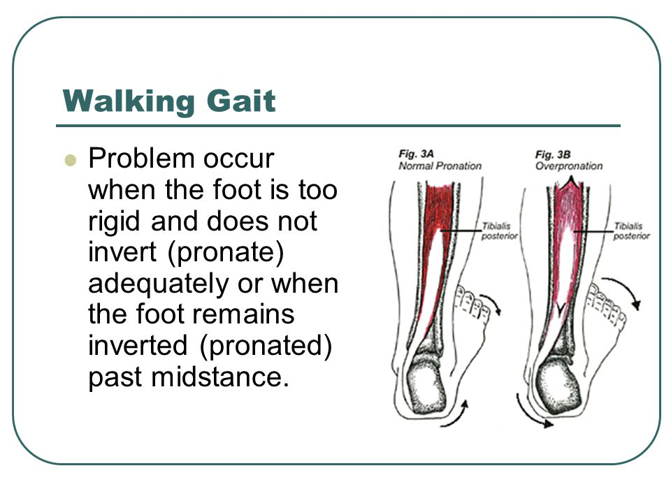 Problem occur when the foot is too rigid and does not invert (pronate) adequately or when the foot remains inverted (pronated) past midstance.