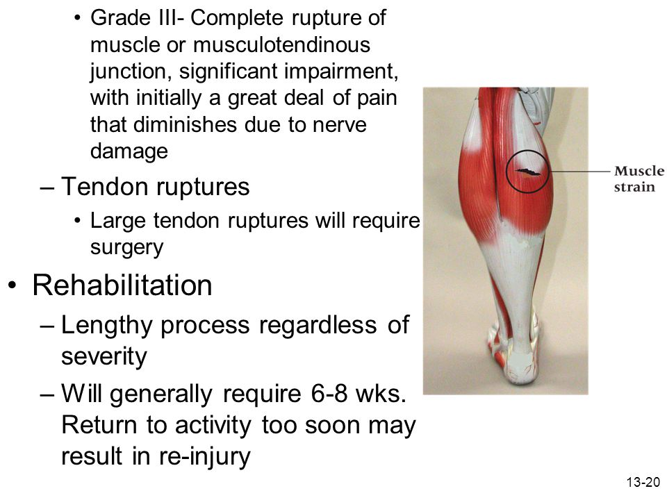 13-20 Grade III- Complete rupture of muscle or musculotendinous junction, significant impairment, with initially a great deal of pain that diminishes