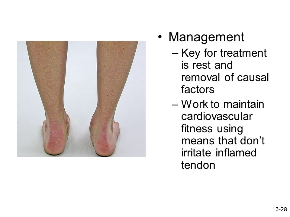 13-28 Management –Key for treatment is rest and removal of causal factors –Work to maintain cardiovascular fitness using means that don't irritate inf