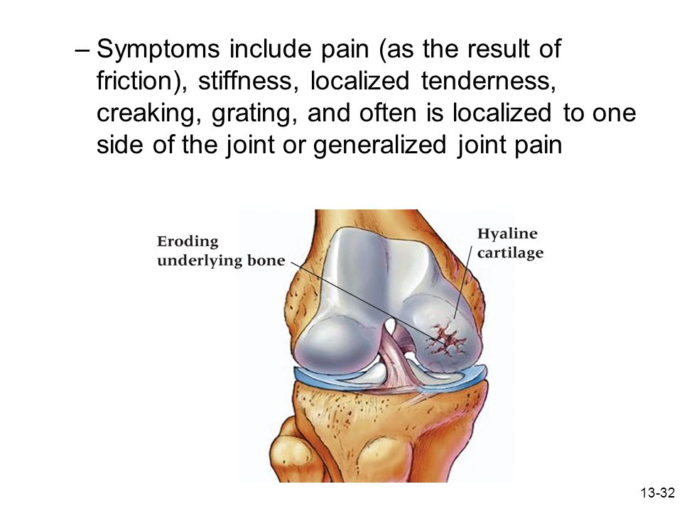 13-32 –Symptoms include pain (as the result of friction), stiffness, localized tenderness, creaking, grating, and often is localized to one side of th