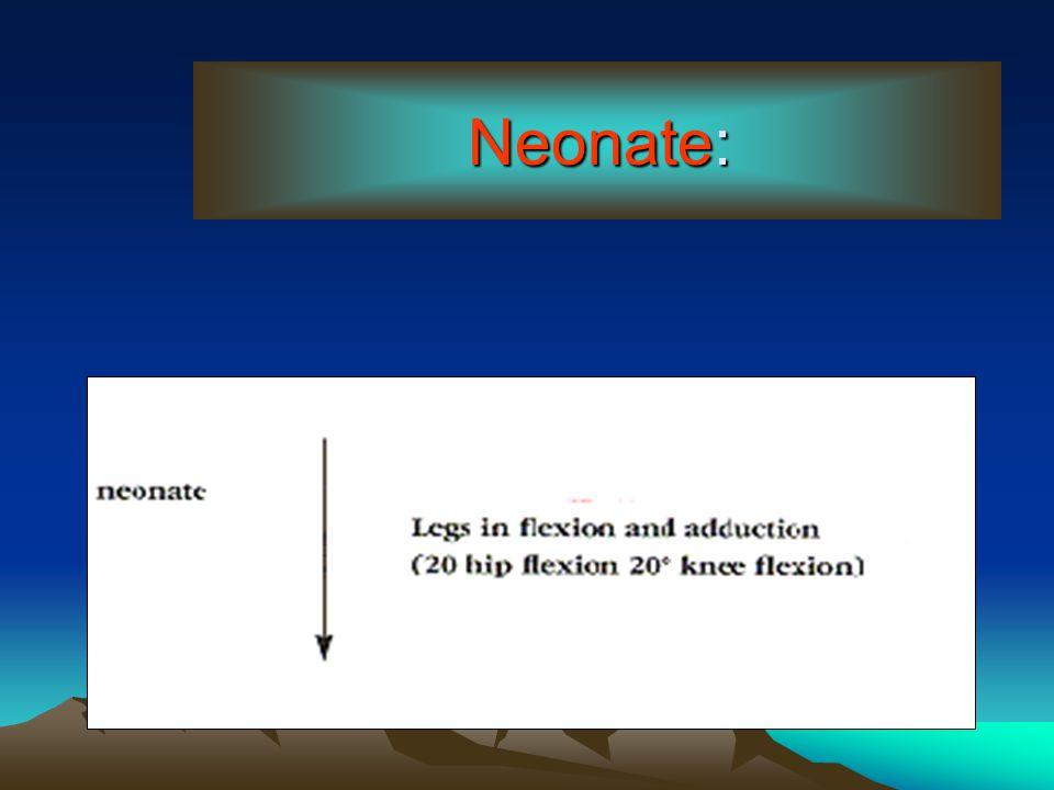 Neonate: