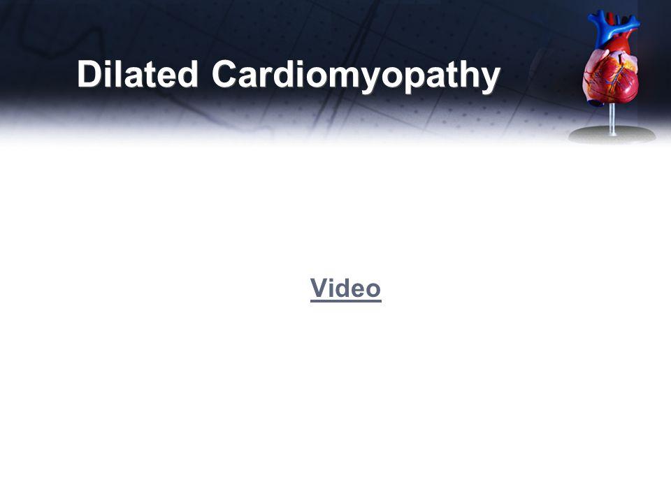 Dilated Cardiomyopathy Video