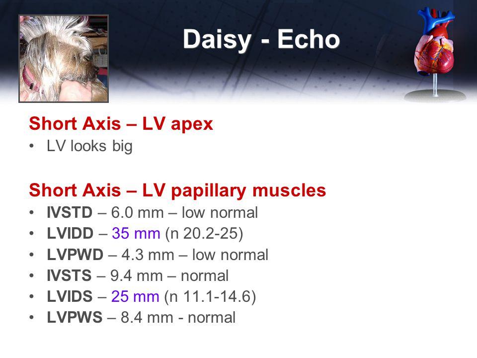 Daisy - Echo Short Axis – LV apex LV looks big Short Axis – LV papillary muscles IVSTD – 6.0 mm – low normal LVIDD – 35 mm (n 20.2-25) LVPWD – 4.3 mm – low normal IVSTS – 9.4 mm – normal LVIDS – 25 mm (n 11.1-14.6) LVPWS – 8.4 mm - normal