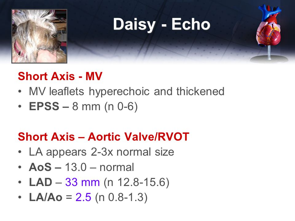 Daisy - Echo Short Axis - MV MV leaflets hyperechoic and thickened EPSS – 8 mm (n 0-6) Short Axis – Aortic Valve/RVOT LA appears 2-3x normal size AoS – 13.0 – normal LAD – 33 mm (n 12.8-15.6) LA/Ao = 2.5 (n 0.8-1.3)