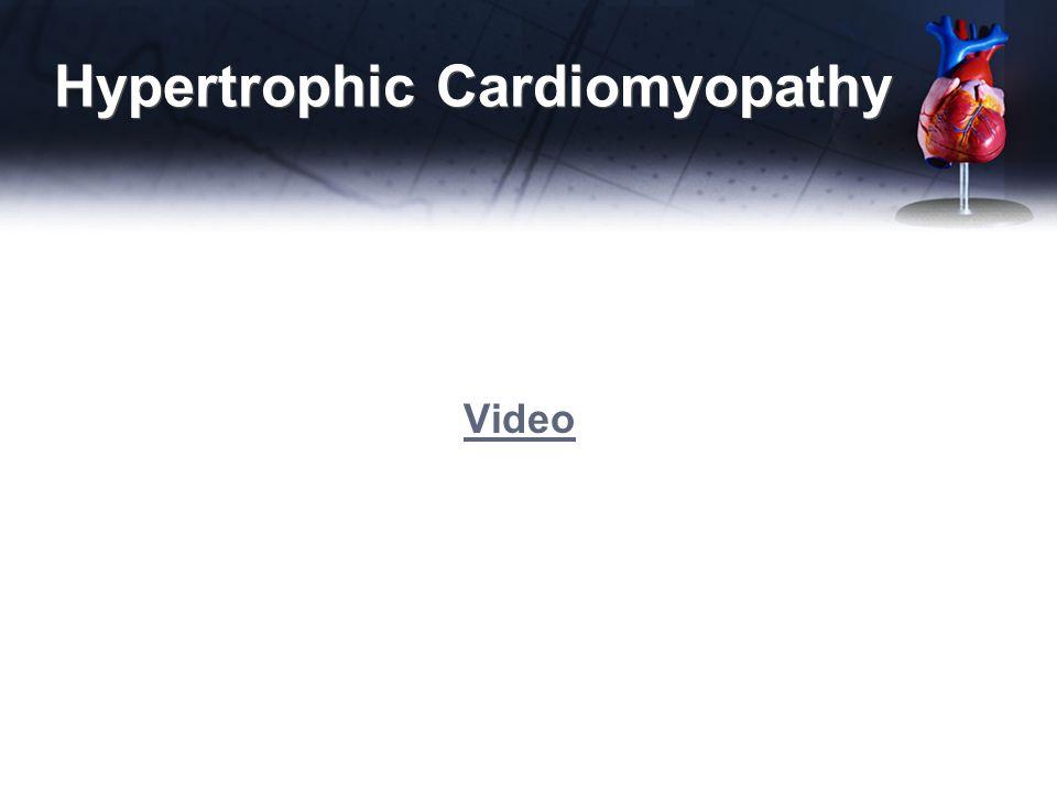 Hypertrophic Cardiomyopathy Video