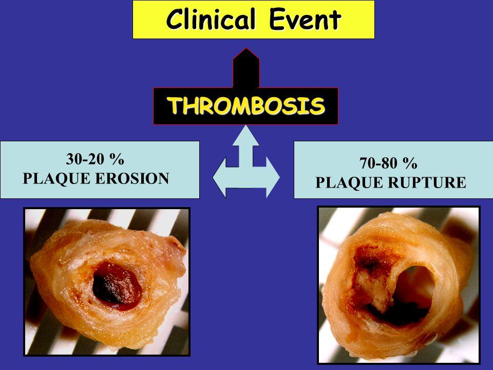 THROMBOSIS 70-80 % PLAQUE RUPTURE 30-20 % PLAQUE EROSION Clinical Event