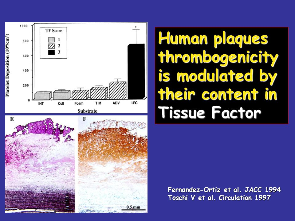 Human plaques thrombogenicity is modulated by their content in Tissue Factor Fernandez-Ortiz et al.
