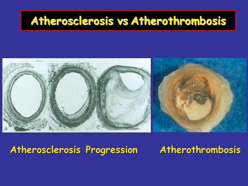 Atherosclerosis vsAtherothrombosis Atherosclerosis vs Atherothrombosis Atherosclerosis Progression Atherothrombosis