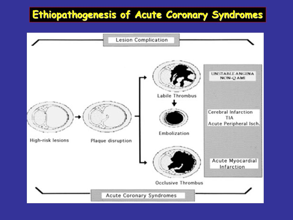 Ethiopathogenesis of Acute Coronary Syndromes