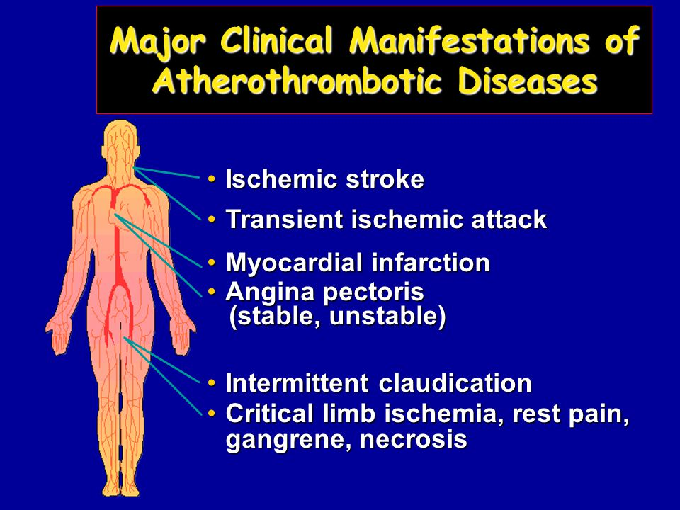 Ischemic strokeIschemic stroke Transient ischemic attackTransient ischemic attack Myocardial infarctionMyocardial infarction Angina pectorisAngina pectoris (stable, unstable) (stable, unstable) Intermittent claudicationIntermittent claudication Critical limb ischemia, rest pain, gangrene, necrosisCritical limb ischemia, rest pain, gangrene, necrosis Major Clinical Manifestations of Atherothrombotic Diseases