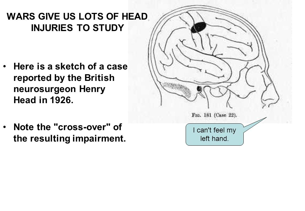 Here is a sketch of a case reported by the British neurosurgeon Henry Head in 1926.
