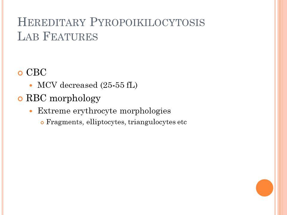 H EREDITARY P YROPOIKILOCYTOSIS L AB F EATURES CBC MCV decreased (25-55 fL) RBC morphology Extreme erythrocyte morphologies Fragments, elliptocytes, t
