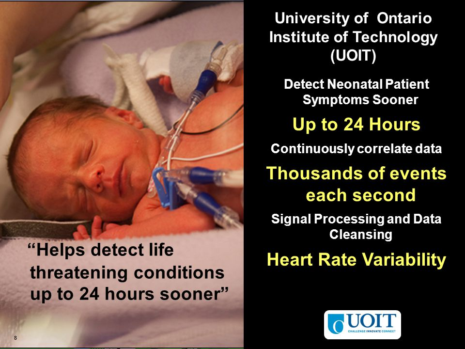 © 2012 IBM Corporation 8 8 University of Ontario Institute of Technology (UOIT) Helps detect life threatening conditions up to 24 hours sooner Detect Neonatal Patient Symptoms Sooner Up to 24 Hours Continuously correlate data Thousands of events each second Signal Processing and Data Cleansing Heart Rate Variability 8