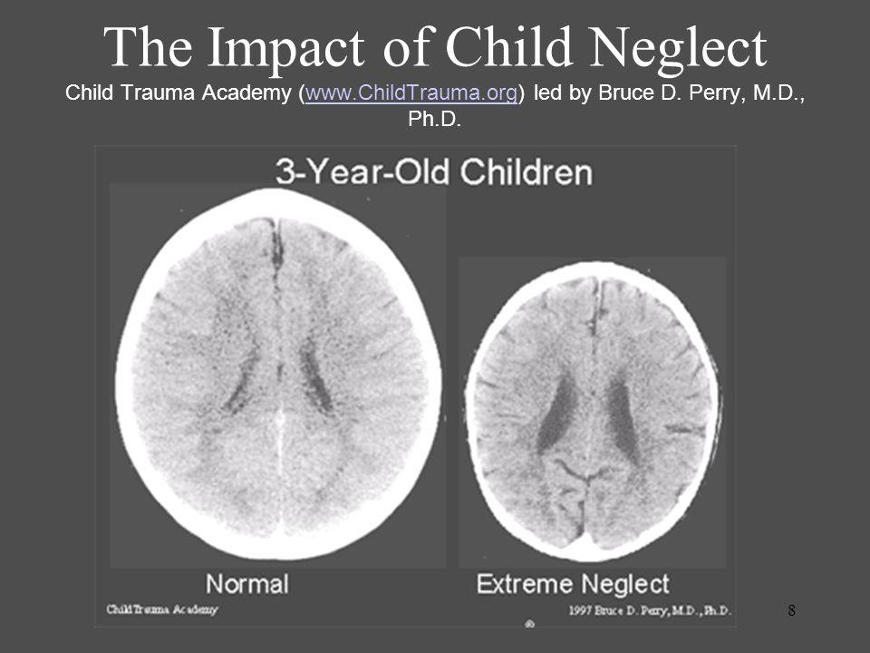 8 The Impact of Child Neglect Child Trauma Academy (www.ChildTrauma.org) led by Bruce D.