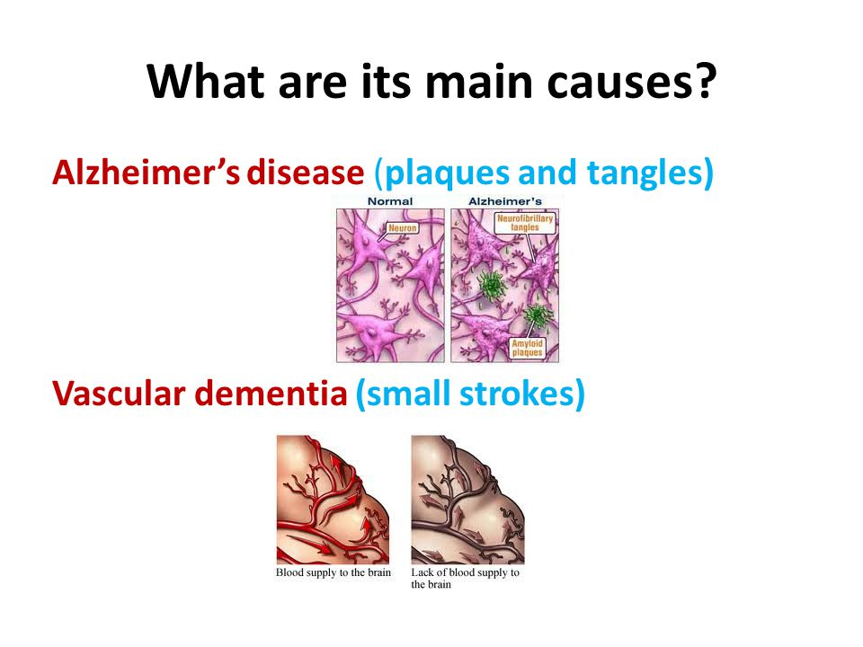 What are its main causes? Alzheimer's disease (plaques and tangles) Vascular dementia (small strokes)
