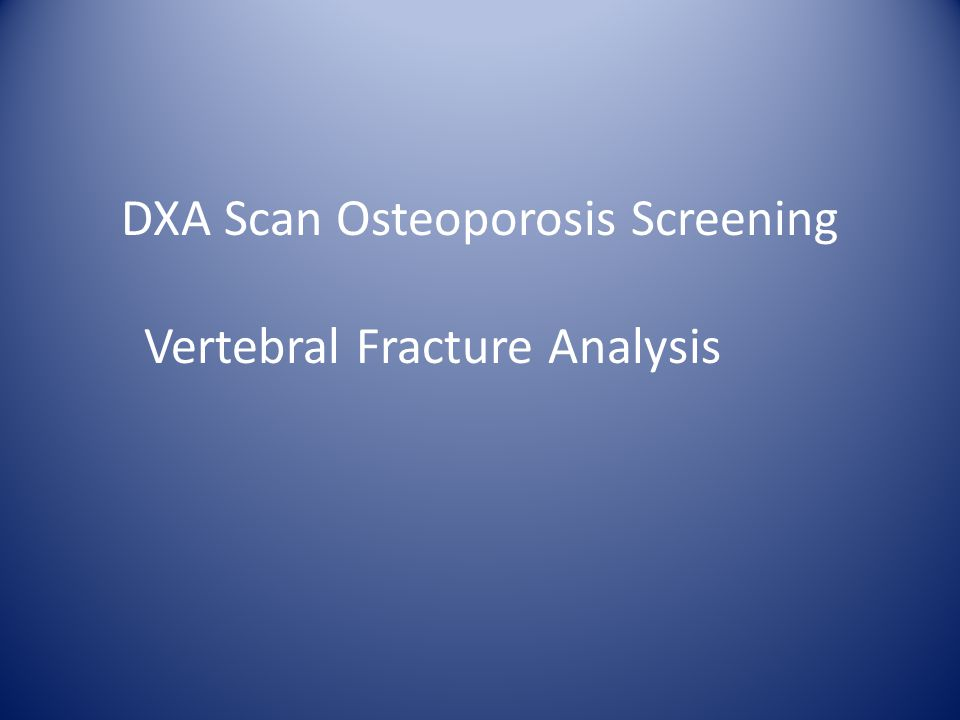 DXA Scan Osteoporosis Screening Vertebral Fracture Analysis