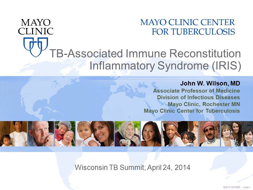 ©2013 MFMER | slide-1 TB-Associated Immune Reconstitution Inflammatory Syndrome (IRIS) Wisconsin TB Summit; April 24, 2014 John W.