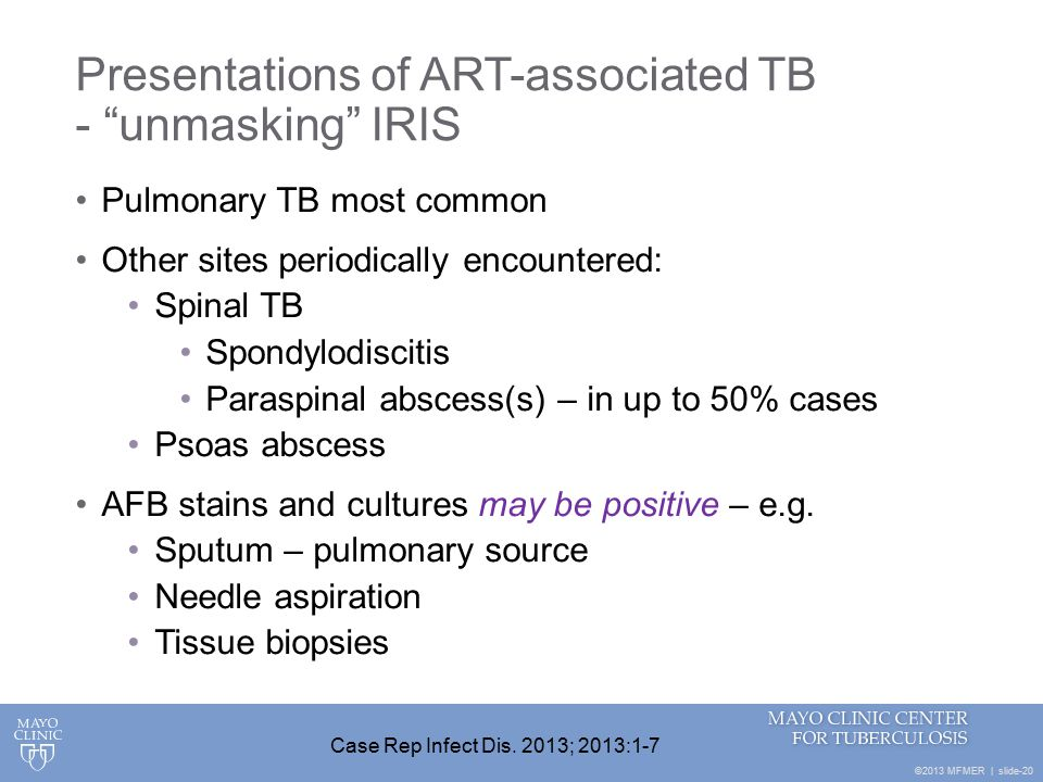 ©2013 MFMER | slide-20 Presentations of ART-associated TB - unmasking IRIS Pulmonary TB most common Other sites periodically encountered: Spinal TB Spondylodiscitis Paraspinal abscess(s) – in up to 50% cases Psoas abscess AFB stains and cultures may be positive – e.g.