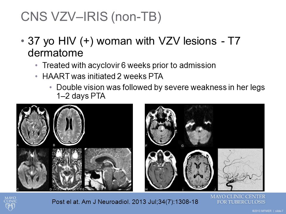 ©2013 MFMER | slide-7 CNS VZV–IRIS (non-TB) 37 yo HIV (+) woman with VZV lesions - T7 dermatome Treated with acyclovir 6 weeks prior to admission HAART was initiated 2 weeks PTA Double vision was followed by severe weakness in her legs 1–2 days PTA Post el at.