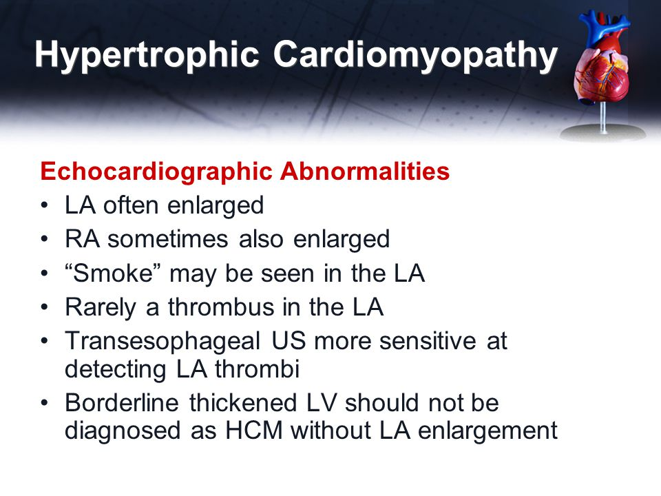 "Hypertrophic Cardiomyopathy Echocardiographic Abnormalities LA often enlarged RA sometimes also enlarged ""Smoke"" may be seen in the LA Rarely a thromb"
