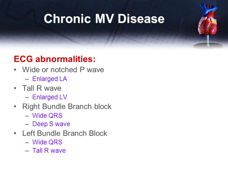 Chronic MV Disease ECG abnormalities: Wide or notched P wave –Enlarged LA Tall R wave –Enlarged LV Right Bundle Branch block –Wide QRS –Deep S wave Le