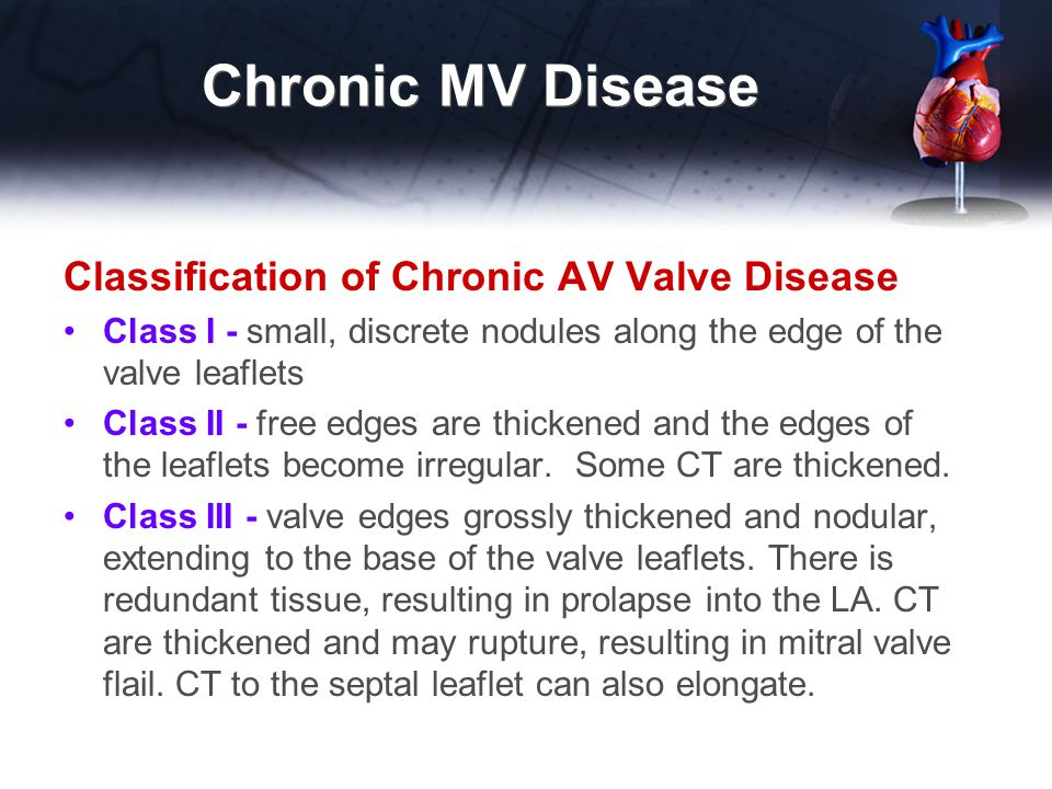 Chronic MV Disease Classification of Chronic AV Valve Disease Class I - small, discrete nodules along the edge of the valve leaflets Class II - free e