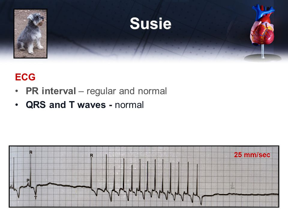 ECG PR interval – regular and normal QRS and T waves - normal Susie 25 mm/sec