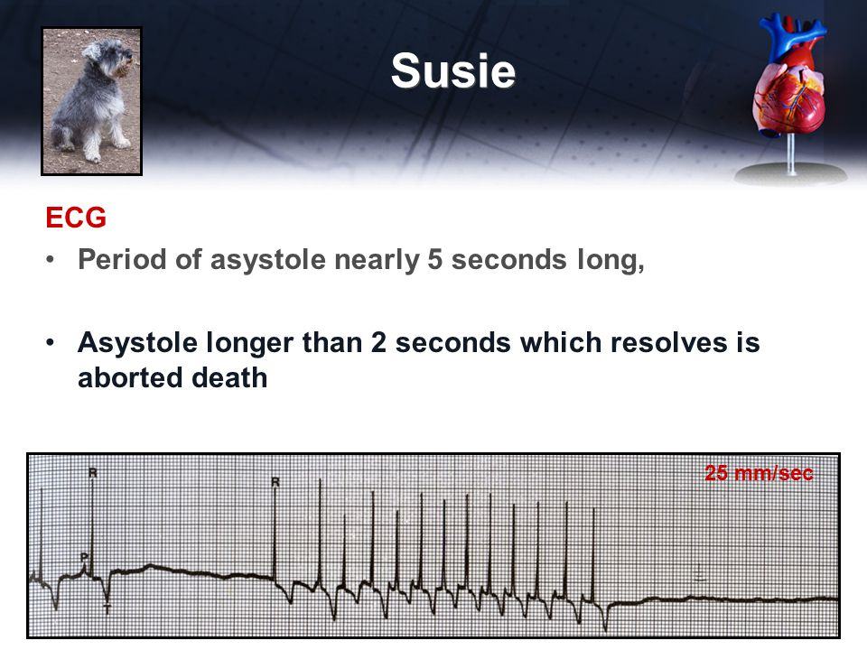 ECG Period of asystole nearly 5 seconds long, Asystole longer than 2 seconds which resolves is aborted death Susie 25 mm/sec