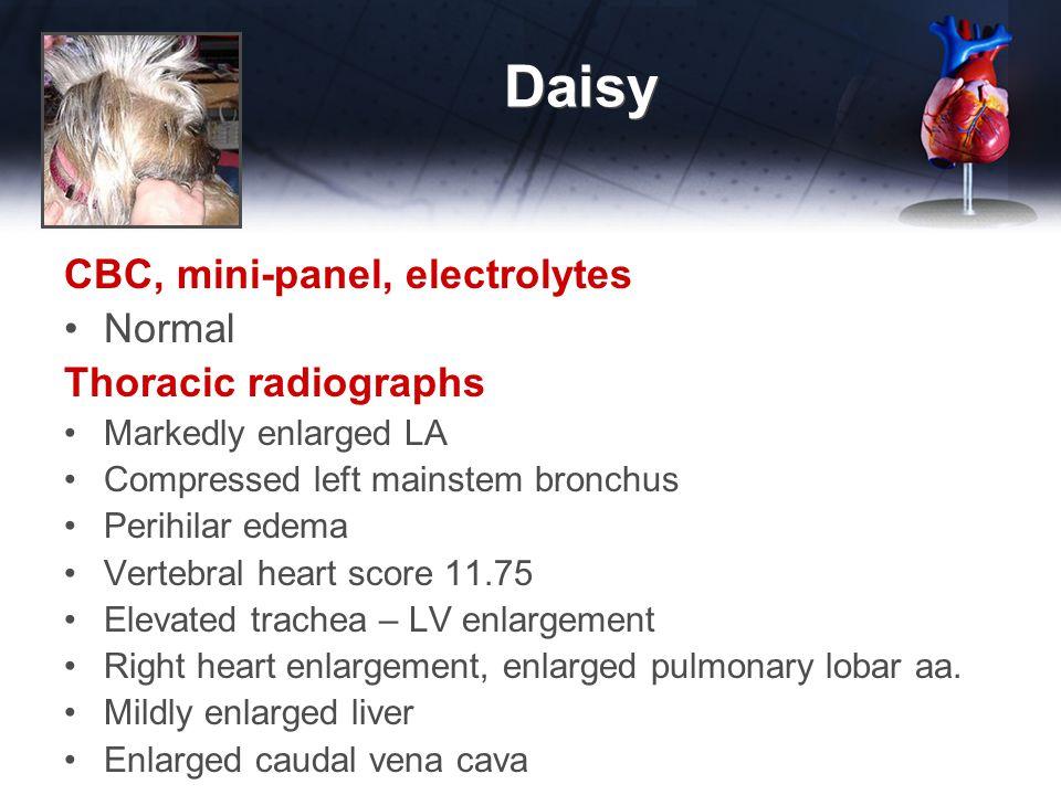 Daisy ECG