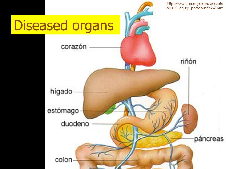 Diseased organs http://www.nursing.uiowa.edu/site s/LRS_equip_photos/Index-7.htm